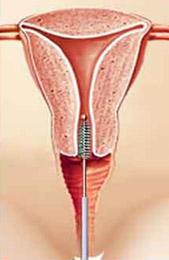 papillomavírus és fájdalom a közösülés során