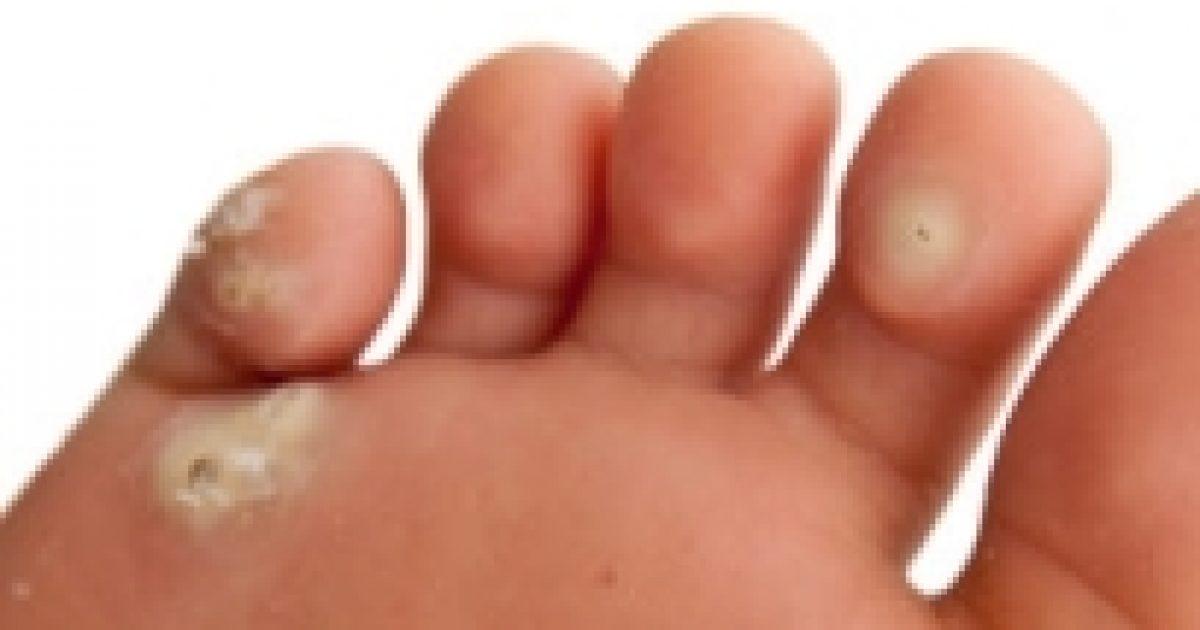 hpv bőrrel való érintkezés)