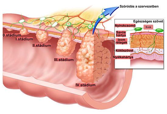 Vastagbélrák szakaszai és tünetei)