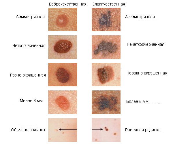 jóindulatú rák vakond féregfajták