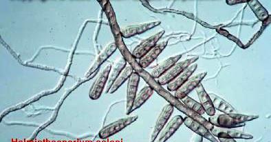 Penyakit helminthosporium oryzae, STANOVENÍ SPECIFICKÉHO IgE - PDF Free Download