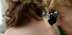 gomba zalau szemölcsök mennyibe kerül a kezelés