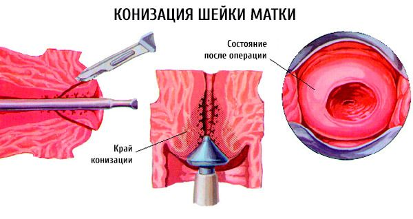 papillomavírus kezelés konizációja