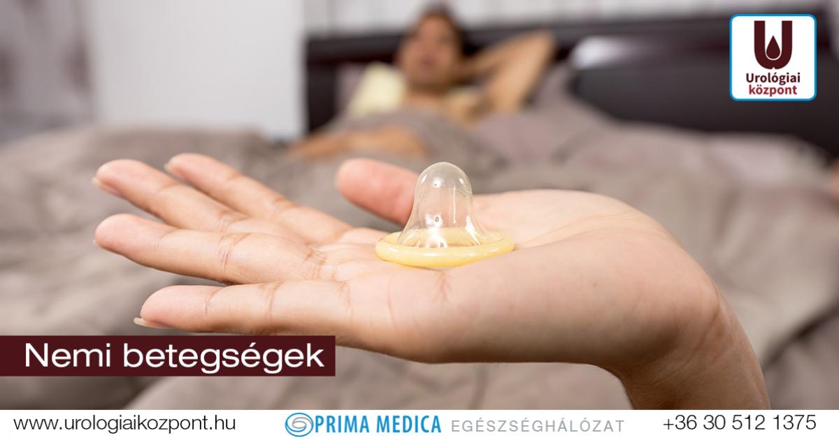 papilloma antibiotikus kezelés)