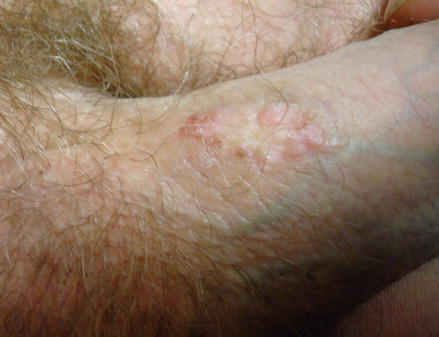 condyloma seborrhea