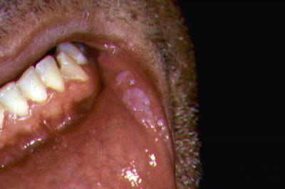 hpv genotípus adalah giardia, ha nem kezelik