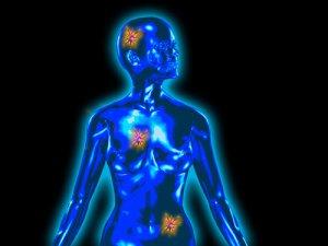 jóindulatú vagy rosszindulatú rák vermicularis oxiuri