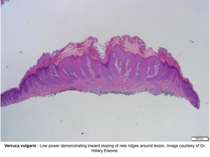 pikkelyes papilloma verruca vulgaris