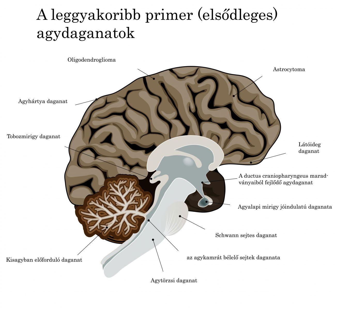 féreggyerekek az emberi agykontroll parazitái