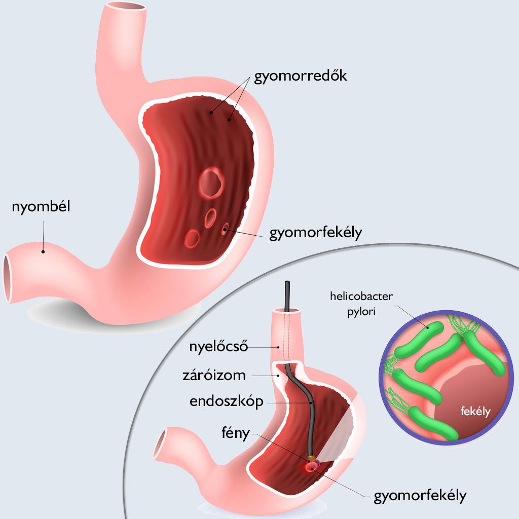 gyomorrák tünetei