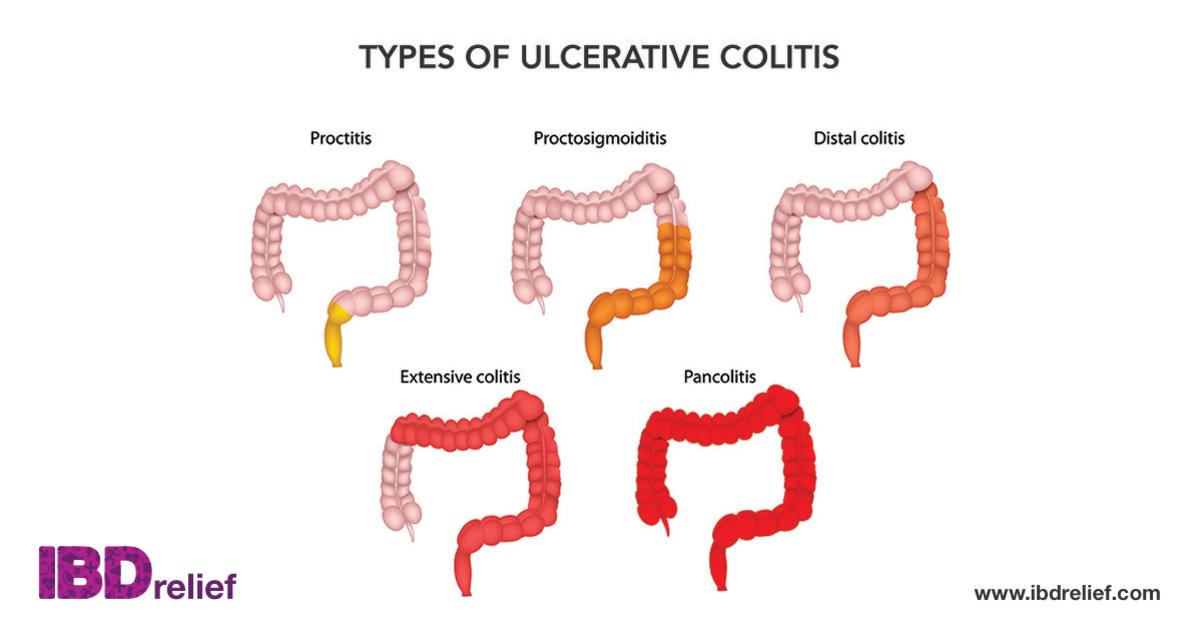 colitis ulcerosa)