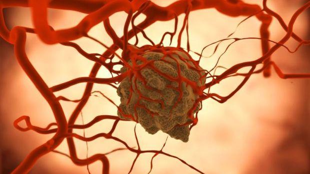 agresszív rákos hetek élni genetikai mutációs rák