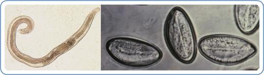 Pinworms vagy enterobiasis tünetei