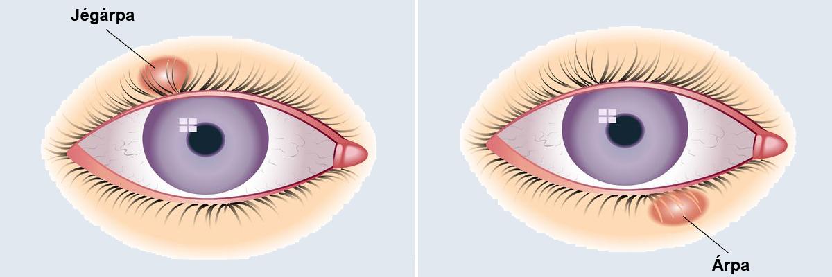 A szem daganatainak gyakoribb típusai   podkedd.hu