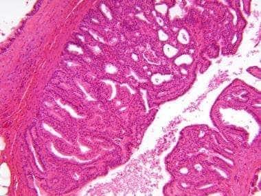 intraductalis papilloma apokrin metaplasiával)