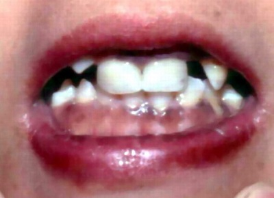 papilláris elváltozás száj