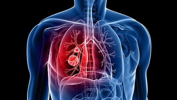 kemoterápia tüdőrákban)