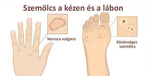 humán papillomavírus ozmózis)