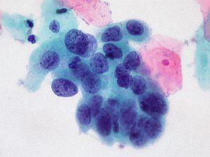 papilloma szűz vakcina vírus)