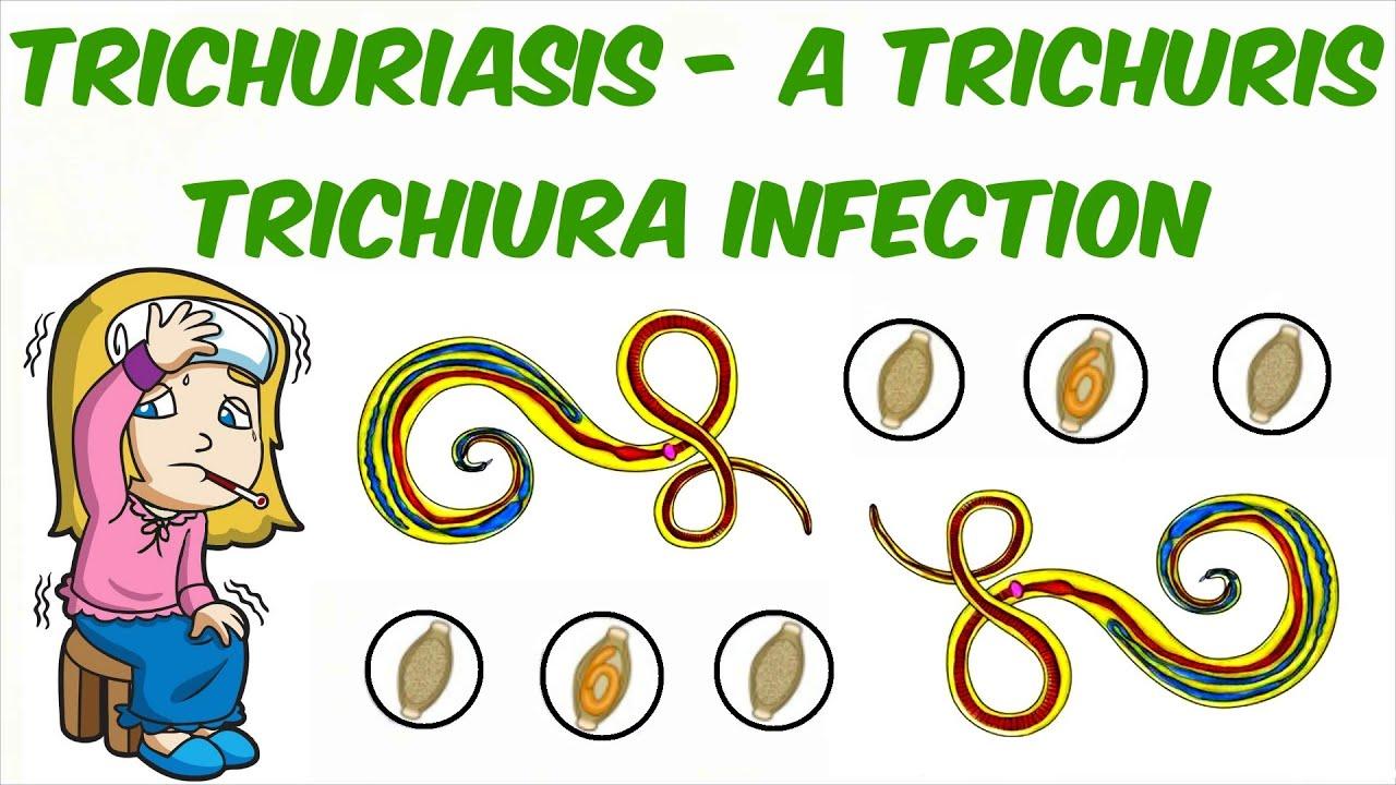 a trichocephalus epidemiológiája)