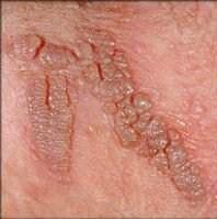 Hpv virus ferfiaknal kezeles. Preventing HPV tratament paraziti intestinali medicamentos