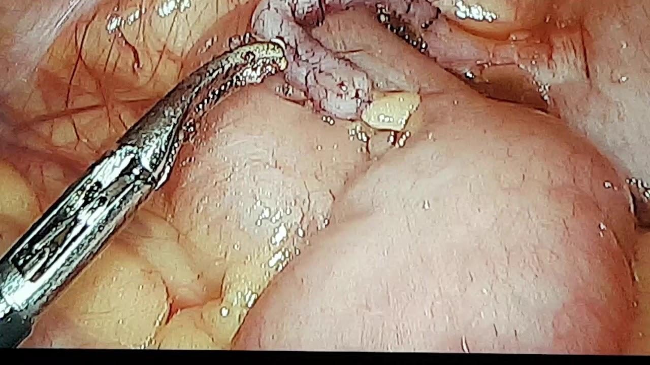enterobius vermicularis baba)