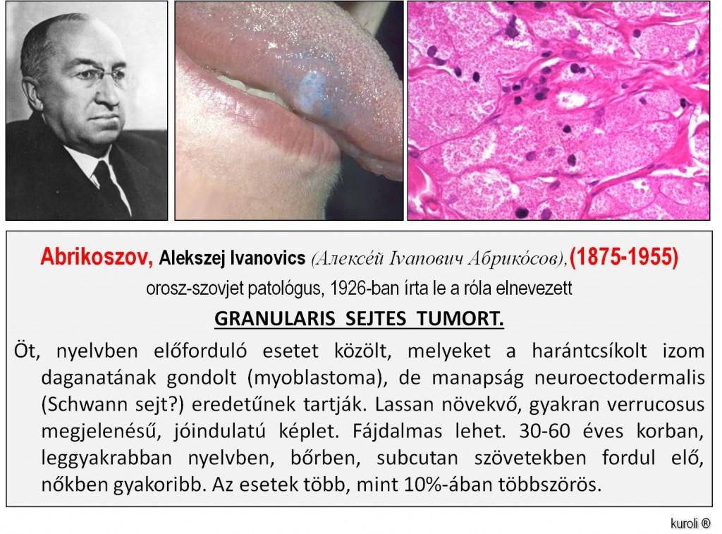 orr átmeneti sejt papilloma)