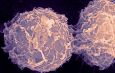 Húsz tünet, amely rákot jelezhet