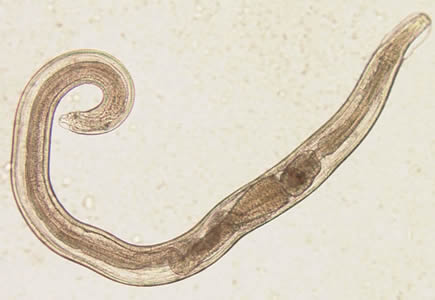Cérnagiliszta fertőzés (enterobiasis)