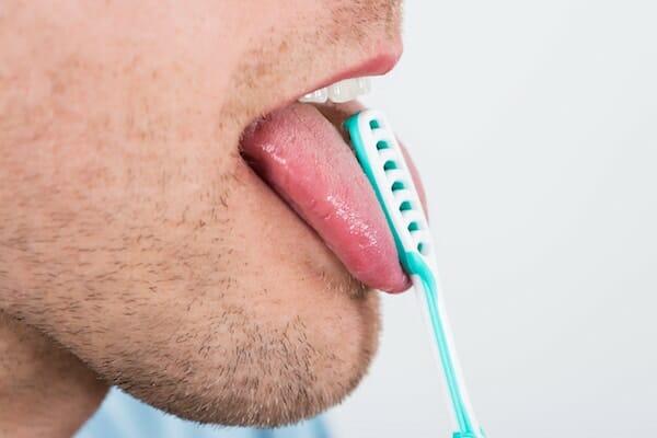 Neoplazma a nyelv alatt: a papillómák megjelenésétől, és hogyan lehet megszabadulni tőlük