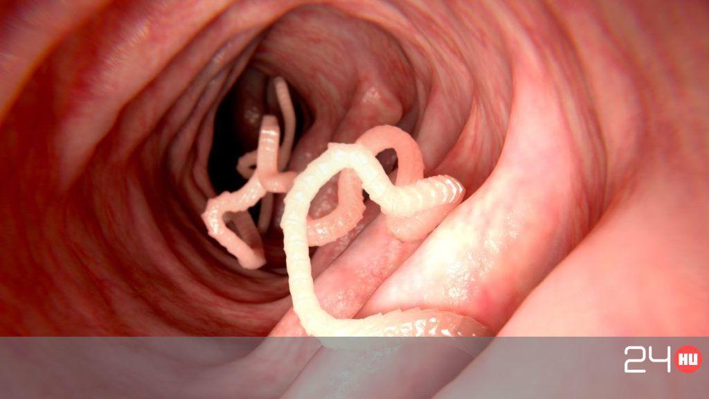 paraziták képekkel tünetekkel