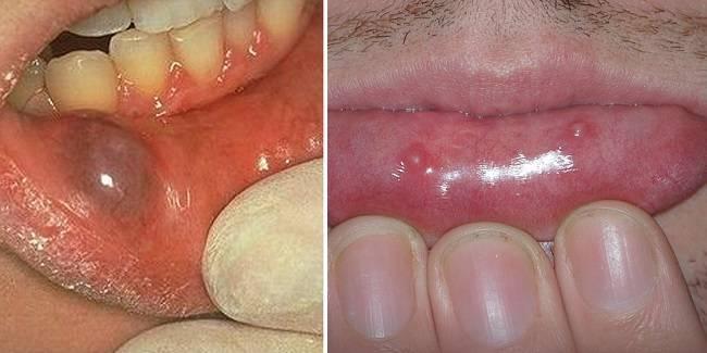 hpv szájcsomó