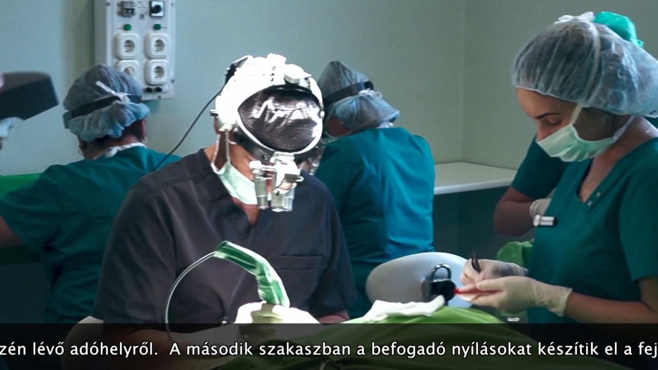 befogadó sebész)