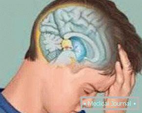 hipofízis rák tünetei