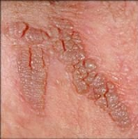 hpv vírus nedir neden olur)