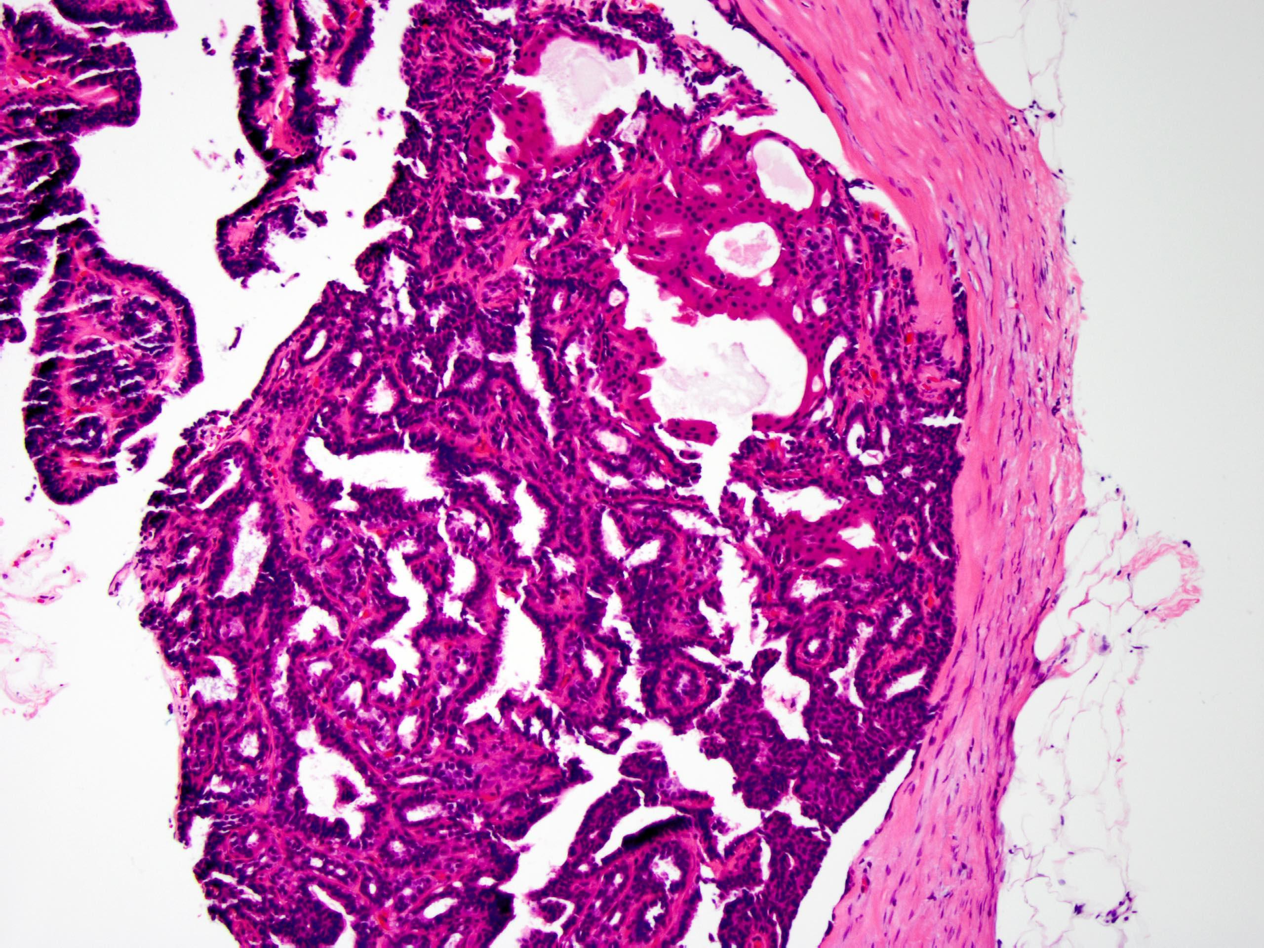 intraductalis papilloma véres mellbimbóváladék rákbiológia jóindulatú daganatok