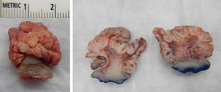 papilloma uvula jóindulatú)