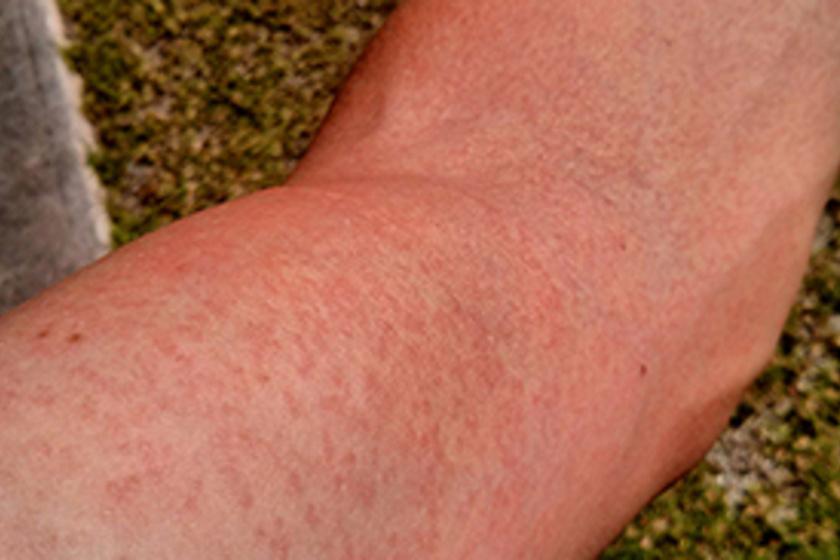 Agresszív és alig felismerhető a gyulladásos mellrák: ezek a tünetei! - Egészség   Femina