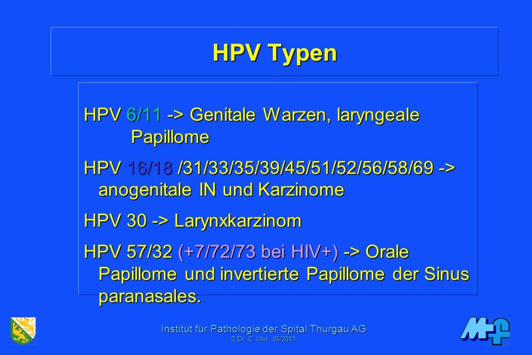 Laphámsejtes papillóma a nyelőcső tünetek és a kezelés megelőzési