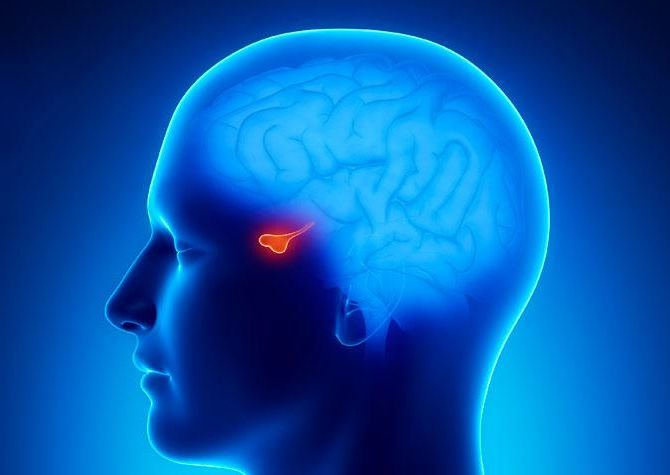Az agyalapi mirigy jóindulatú daganatai