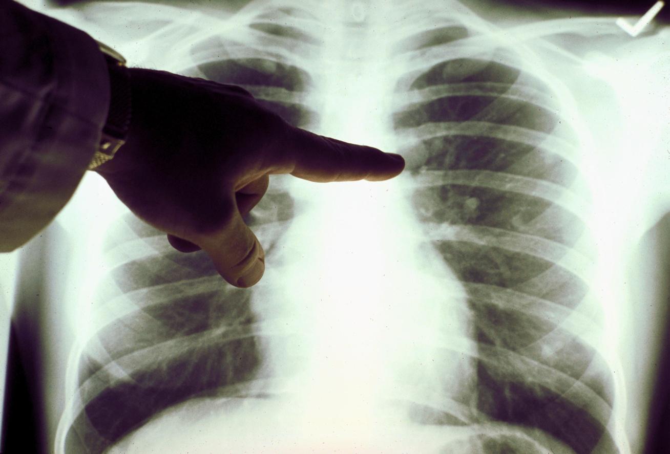 tüdőrák utolsó fázis tünetei