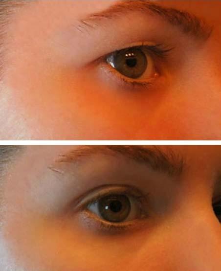 a szem alatti papillómák kezelése