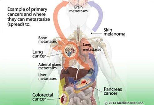 Plázs: Akik meggyógyultak a rákból - élettörténetek | podkedd.hu