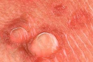 genitális szemölcsök a nyálkahártyán