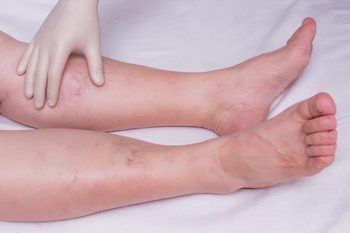Cukorbetegség: A lábfejen levő sebek veszélyesek