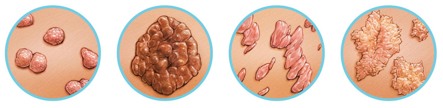 Szemölcs - verruca vulgaris - eltávolítása - Dermatica