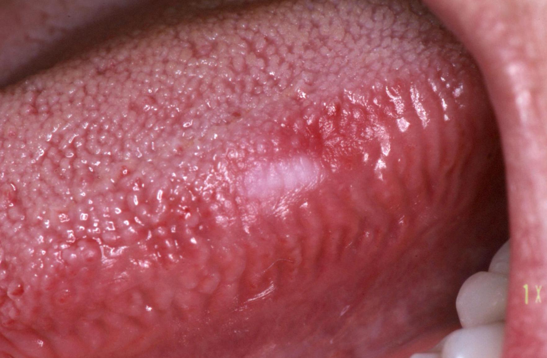 papilloma a szájban hogyan lehet eltávolítani