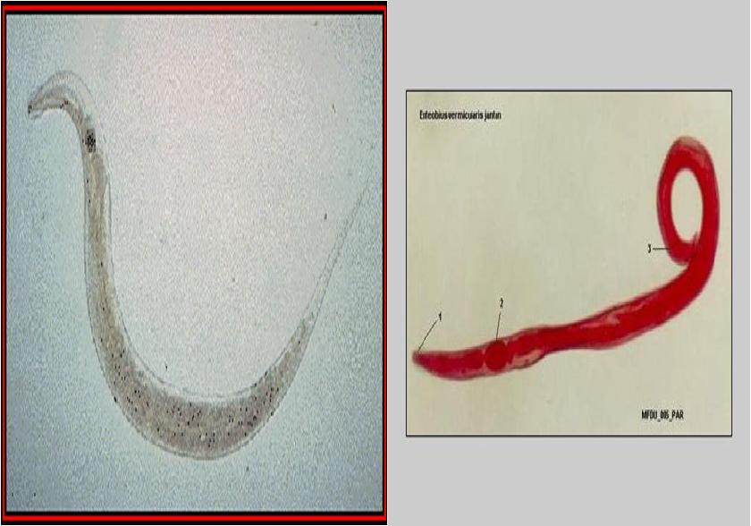 Bélférgesség - Arcanum GYÓGYSZERTÁR webpatika gyógyszer,tabletta - webáruház, webshop
