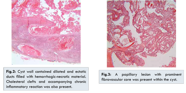 multiplex intraductalis papillomatosis)