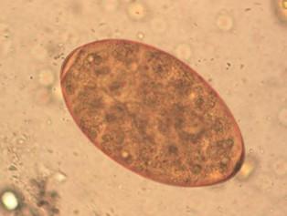 Petesejt és parazita képek A Magyarországon előforduló féregfertőzések